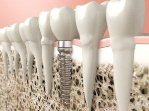 Implante-dentário