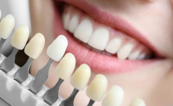 Lente de contato dental Ortodontico