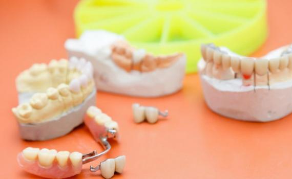 ponte móvel dentária implante