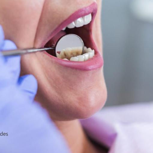 É possível diminuir o tamanho de dentes grandes? Nós te explicamos!