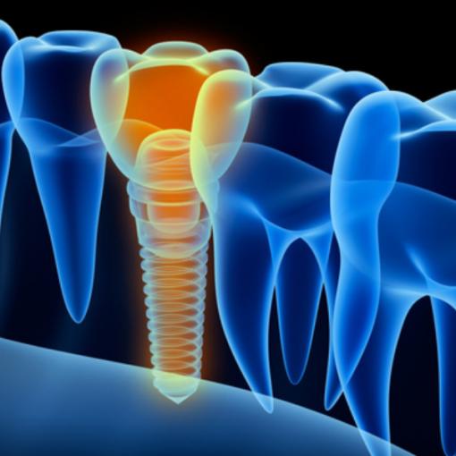 Entenda como deve ser feita a manutenção de dentes implantados
