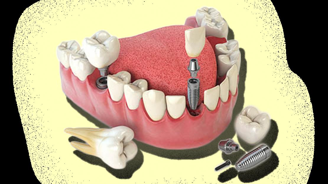 Proteses&Implantes-sitevilar2