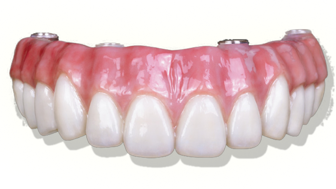 Proteses&Implantes-sitevilar3