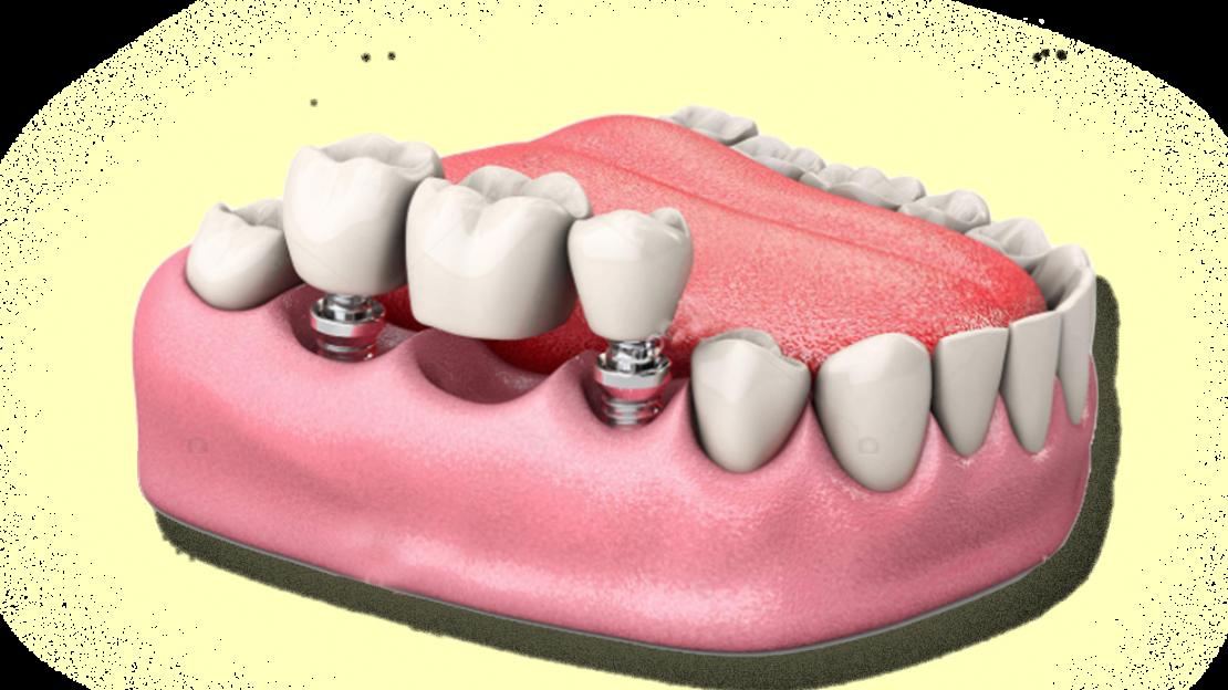 Proteses&Implantes-sitevilar4