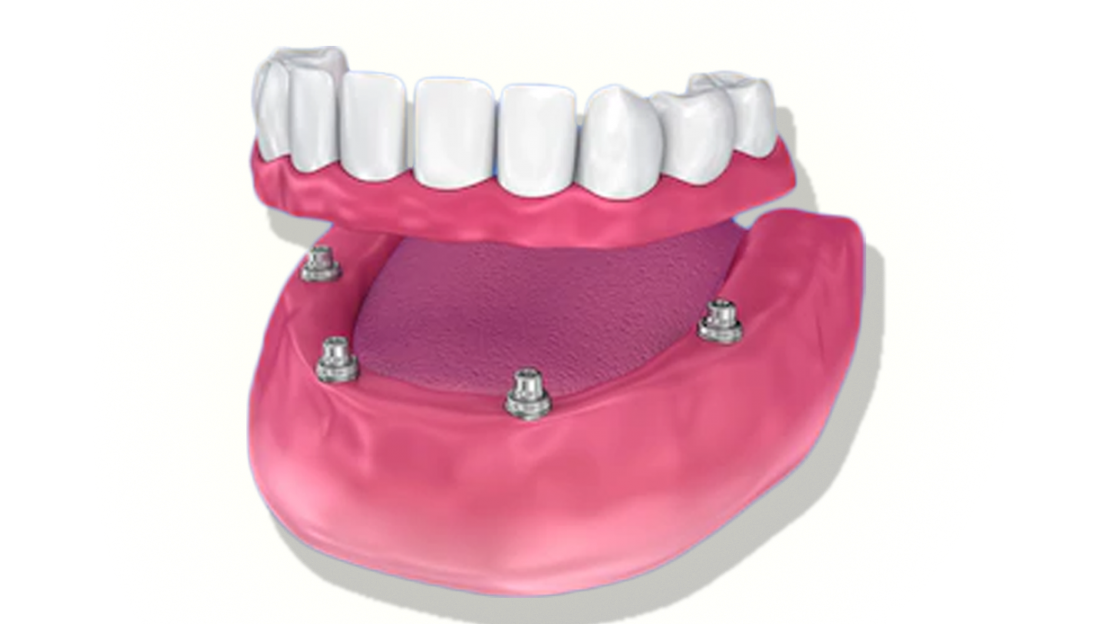 Proteses&Implantes-sitevilar5