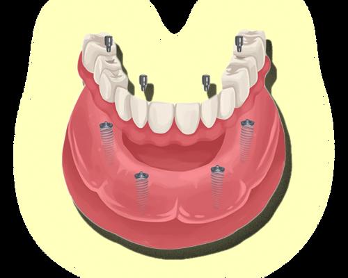 Proteses&Implantes-sitesjm1