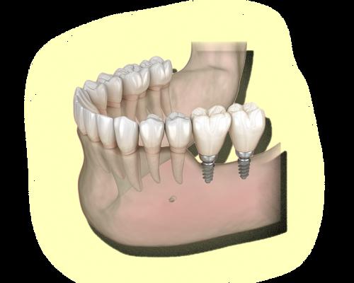 Proteses&Implantes-sitesjm2