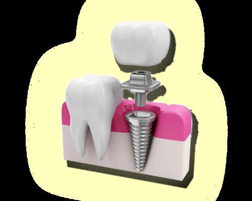Proteses&Implantes-sitesjm3
