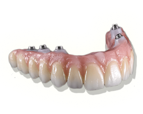 Proteses&Implantes-sitesjm5